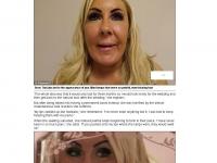 2014-03-19 Botched up Bodies_ Brides' Deborah in agony after having permanent filler _ Mail Online_Page_2